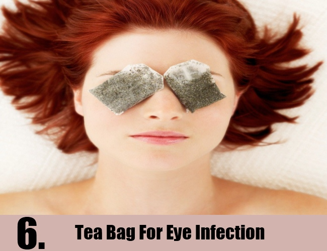 Tea Bag For Eye Infection