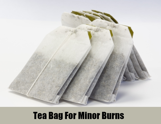 Tea Bag For Minor Burns
