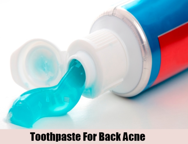 Toothpaste For Back Acne