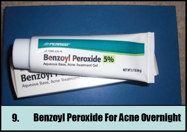 Benzoyl Peroxide For Acne Overnight