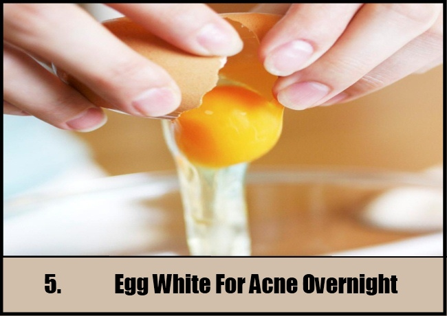 Egg White For Acne Overnight
