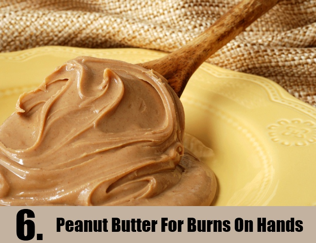 Peanut Butter For Burns On Hands