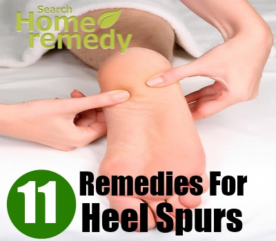 11 Best Home Remedies For Heel Spurs