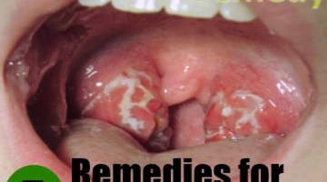 5 Herbal Remedies for Strep Throat