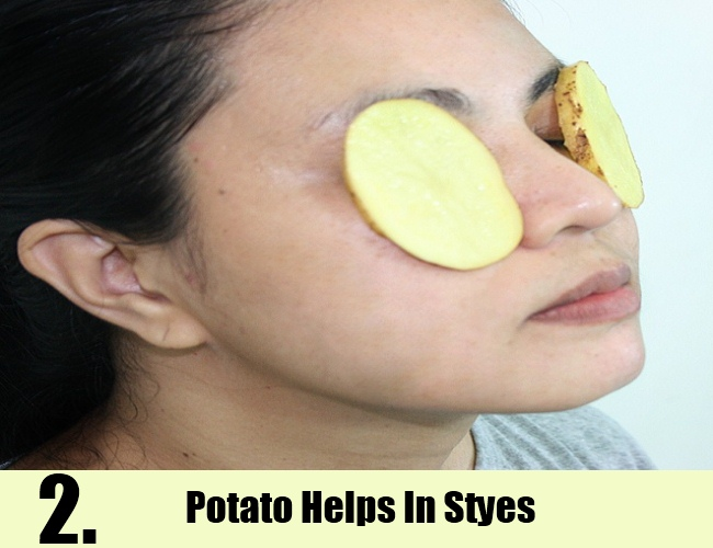 Potato Helps In Styes
