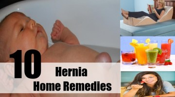 Hernia Home Remedies
