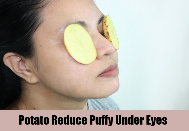 Potato Reduce Puffy Under Eyes