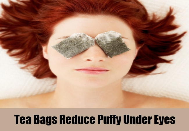 Tea Bags For Puffy Under Eyes