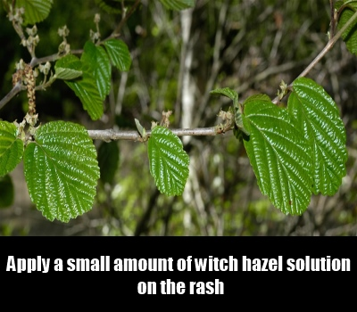 Witch Hazel Solution