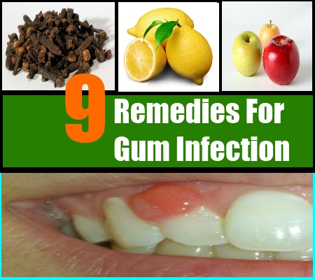 Gum Infection