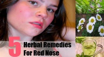 Herbal Remedies For Red Nose