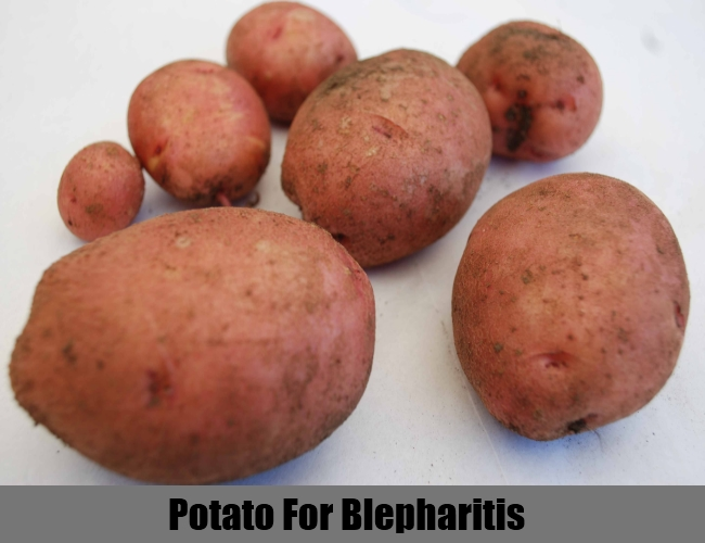 Potato For Blepharitis