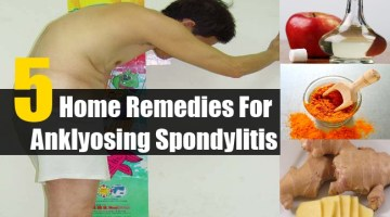 Home Remedies For Anklyosing Spondylitis