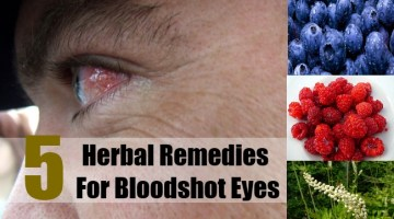 Herbal Remedies For Bloodshot Eyes