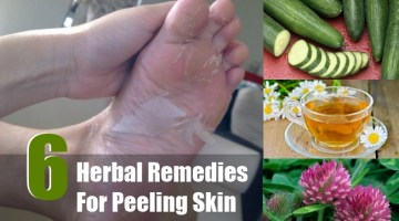 Herbal Remedies For Peeling Skin