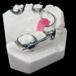 aparat-ortodontic-13