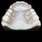 aparat-ortodontic-16