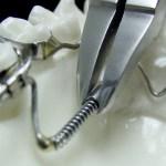 aparat-ortodontic-18