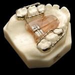 aparat-ortodontic-8