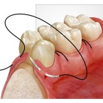 exemplu-chirurgie-orala