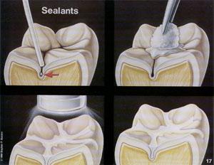 Sigilarea dintilor