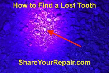How to Find a Lost Tooth