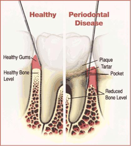 Gingivitis and periodontal Disease SHDC