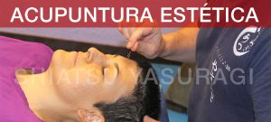 acupuntura aplicada a la estética