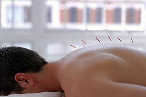 acupuntura8