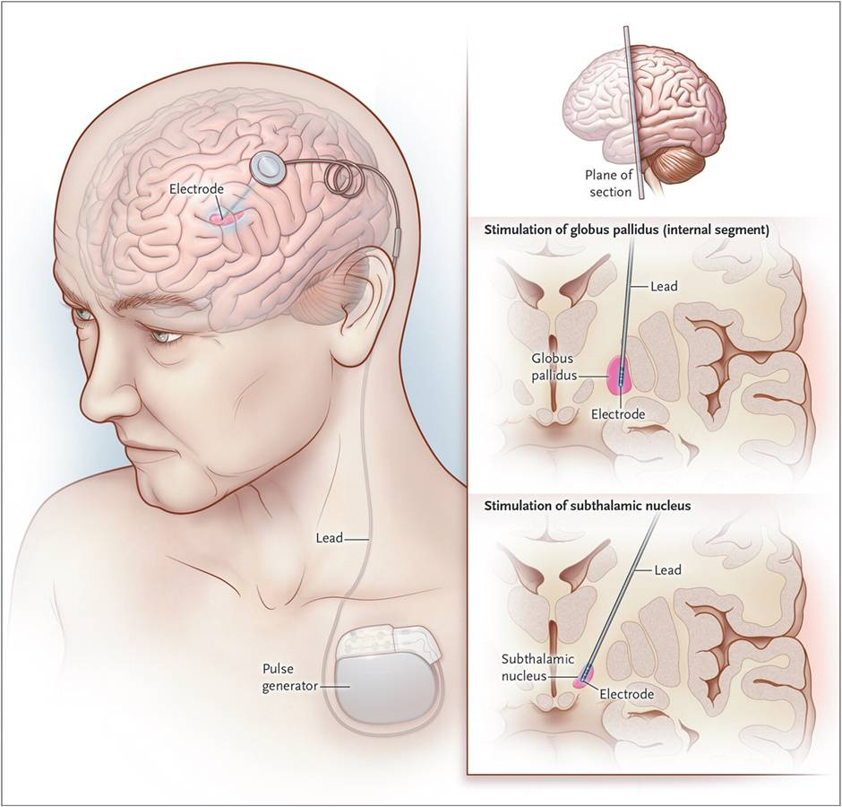 Epilepsy And Headaches Auto Electrical Wiring Diagram Heat York Pump 063 84793c Deep Brain Stimulation For Tic Disorders Fad Therapy Or