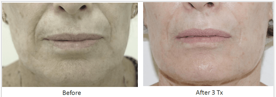 Skin Tightening Facial Contouring Before After