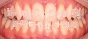 braces 04