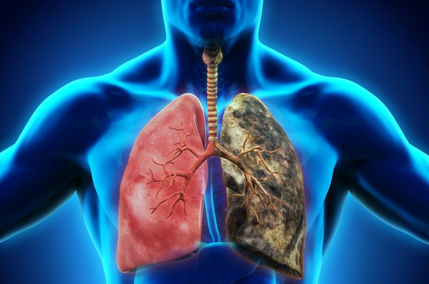 Image result for Respiratory Diseases - Everything about it.