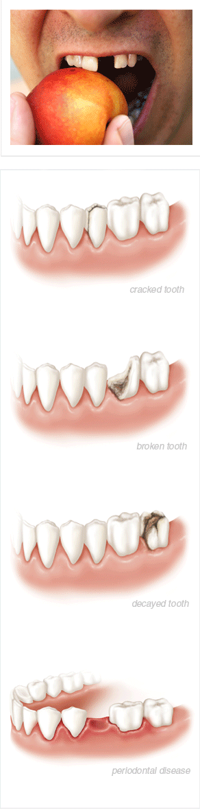 tooth-extraction-cause