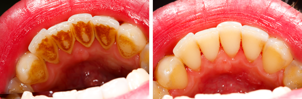 gum-infection-and-periodontitis-treatment-n-sodepu--agarpara-area
