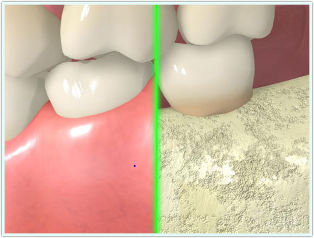 Gingiva or Gums, Pediatric Dentistry Videos