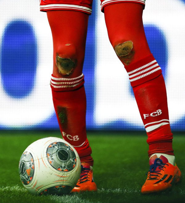Stay classy Arjen and maybe you won't ruin your tights!