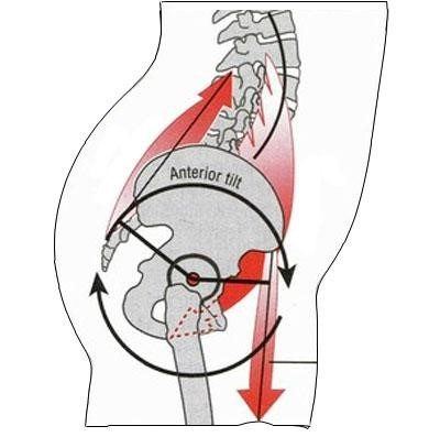 What exactly is a pulled hip flexor? - SoccerNation