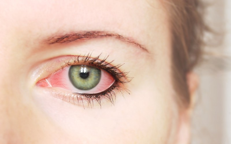 Causes, Symptoms And Tips To Overcome Dry Eyes