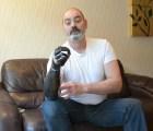 terminator-prosthetic-arm