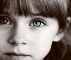 Un láser para cambiar el color de ojos