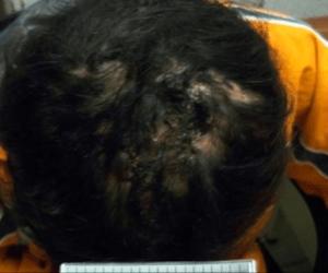 La terrible historia de la joven que vivió encadenada 2 años en Tlalpan