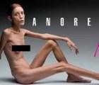 Francia prohíbe a las modelos muy delgadas