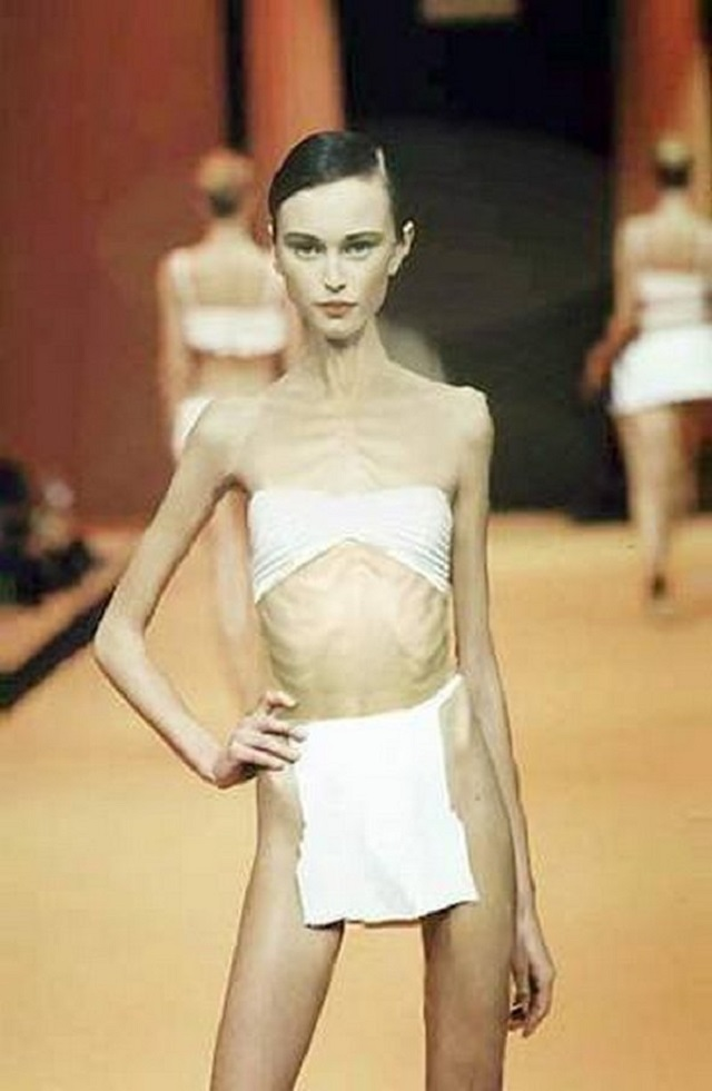 anorexic-models-23