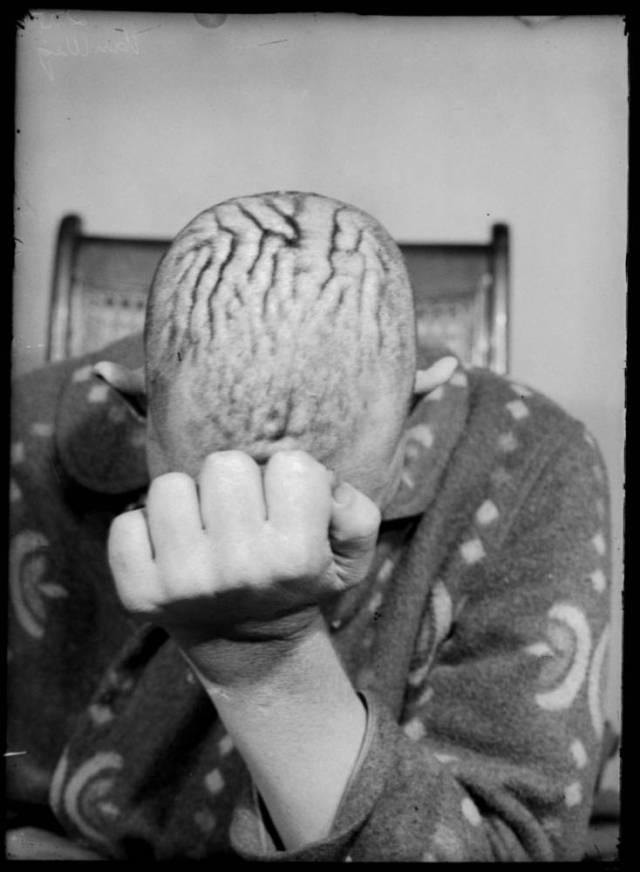 cirugia cerebral6