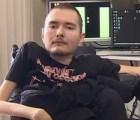 El hombre que quiere someterse al primer transplante de cabeza