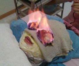 facial_fuego_