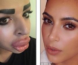 kardashian operado4