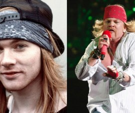 Axl Rose Antes y Despues
