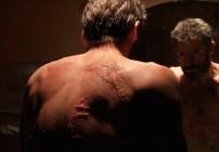Logan Cicatrices